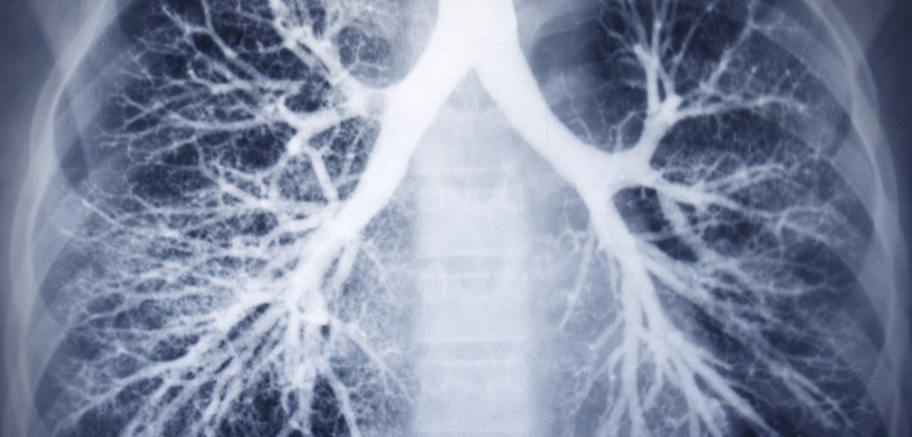 2 Case Studies of Pneumonia with Complications Shed Light on Lung-Dominant Connective Tissue Disorder
