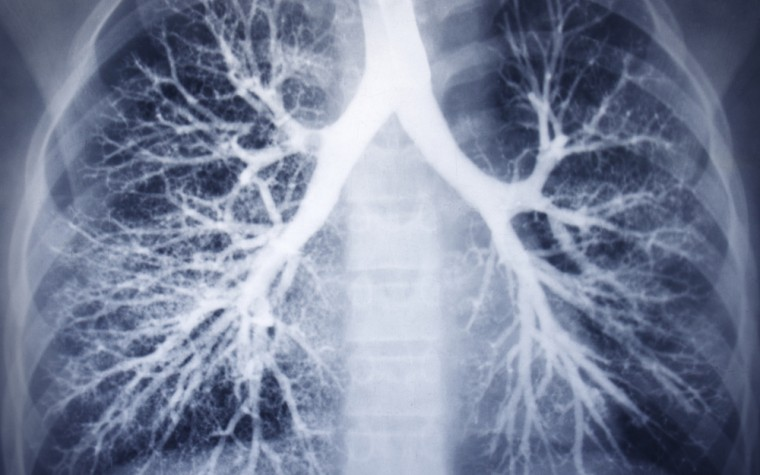 case studies of interstitial pneumonia