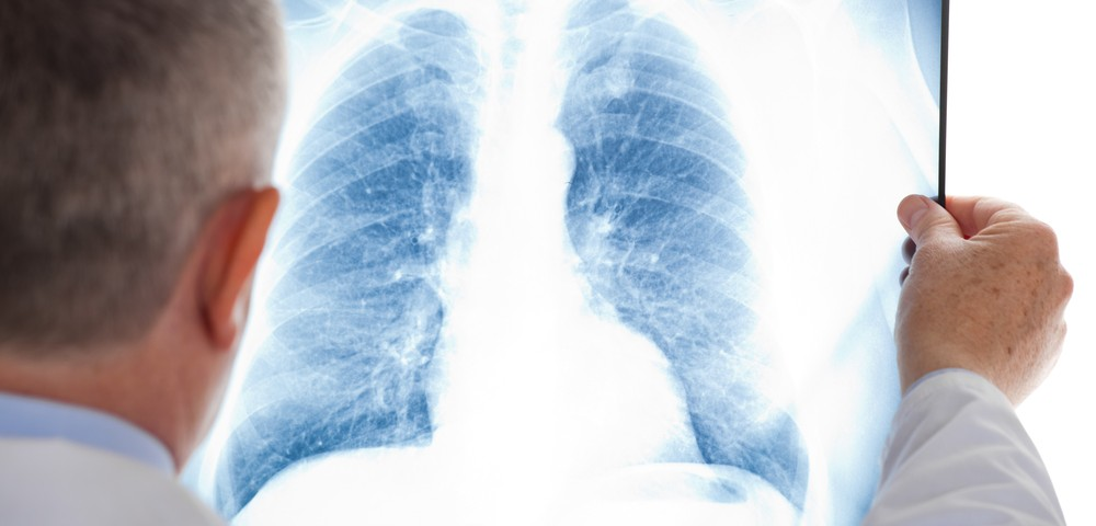 Recomodulin May Help Specific Pneumonia Patients Suffering Acute Exacerbations, Study Suggests