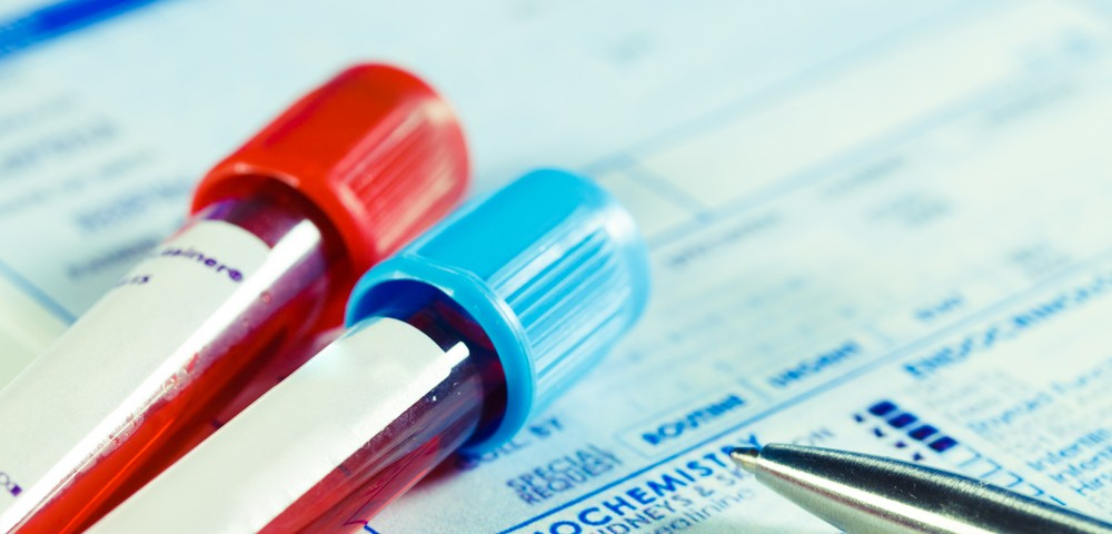 Blood Biomarker May Confirm Pneumonia in Hospitalized Patients
