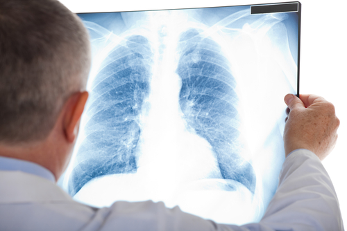 Lung Ultrasound Can Help Diagnose Pneumonia Masked as Pulmonary Embolism