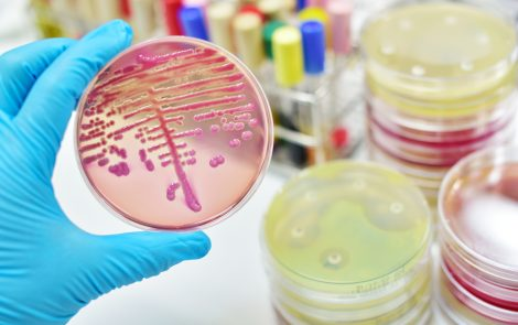 Omadacycline Shows Punch Against Drug-Resistant Bacteria, Studies Indicate